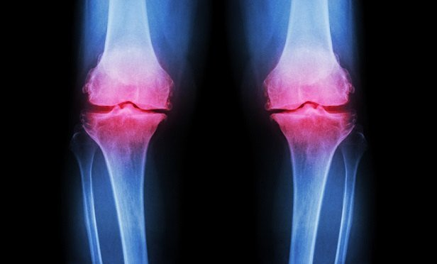 X-ray showing steoarthritis in the knees