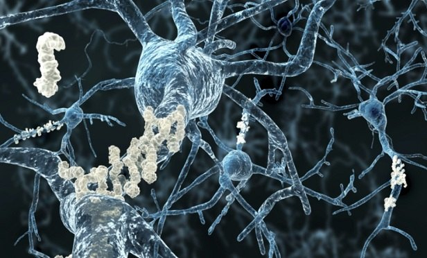 Alzheimer's disease - neurons with amyloid plaques