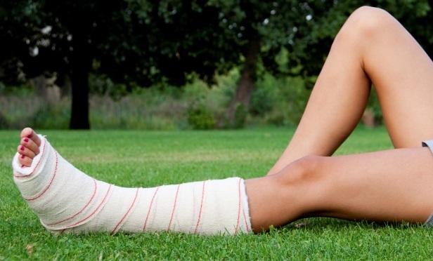 Broken leg (Credit: Thinkstock-LHP)