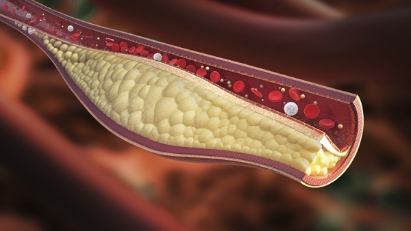 Clogged blood vessel (Image: Thinkstock)